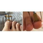 επαγγελματικό εργαλειο ( ναρθηκακι) για νυχια που μπαινουν στο δερμα
